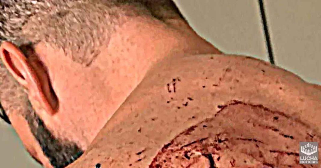 Fuertes imagenes de las heridas de Matt Cardona trás su Death Match