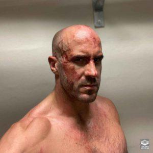 Cesaro sufre herida en el rostro 2